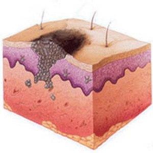 базалиома кожи фото симптомы