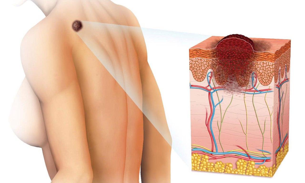 базалиома кожи лечение