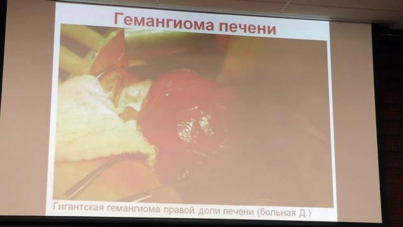 Пышкин С.А. Объемные образования печени. Гепатоцеллюлярная карцинома.