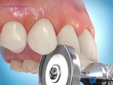 Сепарация с помощью диска с протектором. Пропедевтика ортодонтии.