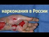 наркомания в России коаксил