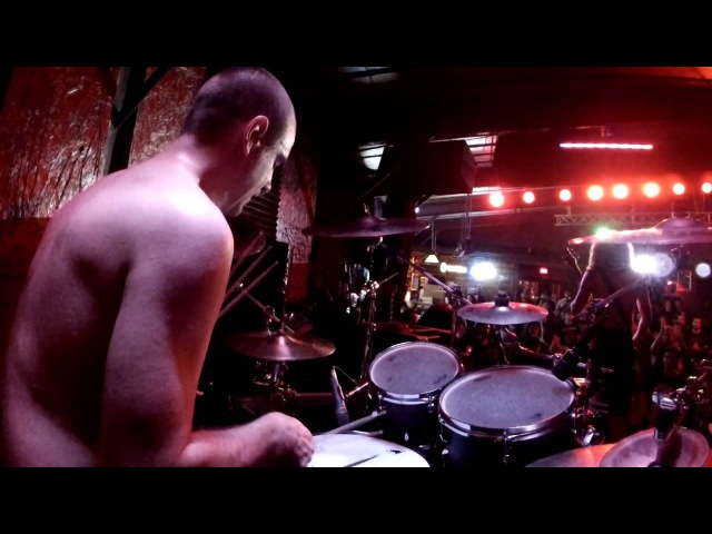 CEREBRAL EFFUSION DRUM CAM JUNE 17TH, 2015