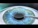 Carl Zeiss Meditec - Visumax - RELEX SMILE