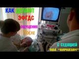 Мнение Юранки о ЭФГДС (Гастроскопия) с седацией (яко бы наркозом) | Как мне делали гастроскопию