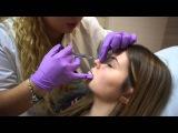 VLOG  Контурная пластика носа, губ  Как убрать синяки под глазами