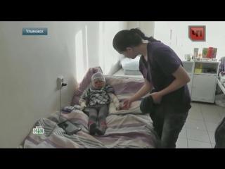 ВУльяновске коллектор поджег ребенка за долги родителей