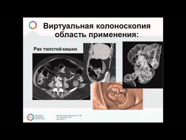 Сыворотка Глютаминовой Оксалоацетиновой Трансаминазы