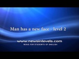 Man has a new face - level 2
