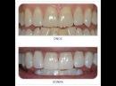 Doğal Diş Beyazlatma Yöntemi Suna Dumankaya Şifa Market 0224 234 56 78