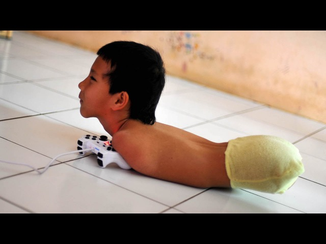 Limbless PlayStation Gamer Uses Chin And Shoulder To Play