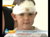 7-летний герой. Юный иркутянин спас от напавшей собаки маленькую девочку, но сам получил травмы