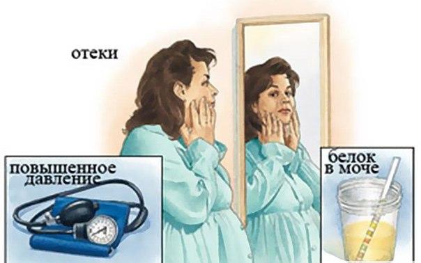 Профилактика эклампсия у беременных
