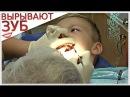 VLOG:ВЫРЫВАЮТ КОРЕННОЙ ЗУБ МАЛЬЧИКУ  Поход к детскому стоматологу Табиб Бэби Уфа 