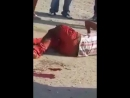 Ужасной травмой ноги после аварии на мотоцикле - видео - 1TU.Быть