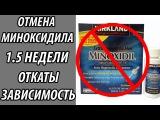 Отмена Миноксидила minoxidil для бороды  ОТЧЕТ 1.5 недели, ОТКАТЫ? ЗАВИСИМОСТЬ?