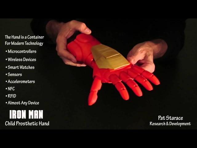 3D Printed IRON MAN Super Hero Child Prosthetic Hand