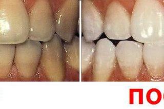 У меня зубы желтый как сделать белыми
