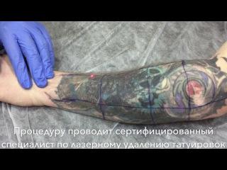 Удаление татуировки на руке неодимовым лазером #удалениетату #удалениетатуаж #л...