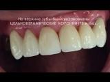 Dr- Azamat -Tekuyev - Smile-Designer - protezi - zubnie