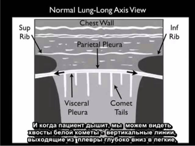 Yльтразвуковое исследование с целью выявления пневмоторакса на конкретном прим...