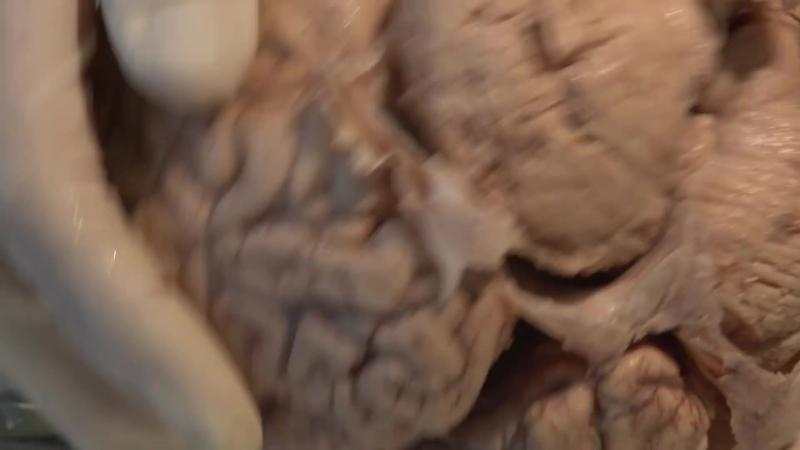Бабка с мозгами, ч.4. The Meninges