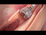 Capture MegaVac Mechanical Thrombectomy System