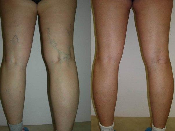 """Микросклеротерапия против варикоза в """"LinLine"""" со скидкой 50%"""
