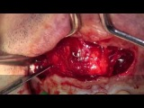 Dental Cyst Surgery (Enucleation of Radicular Cyst) dr.Stefano Piras (Rimini)