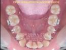 Устранение скученности у подростков за счет дистализации 6х зубов. Ортодонтия.