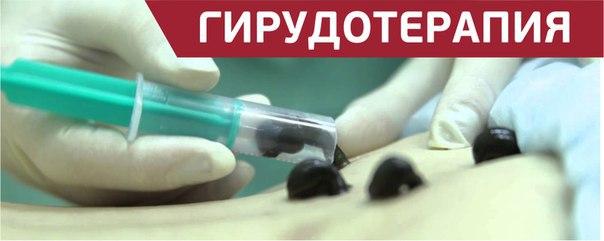 Афиша Калуга Секреты гирудотерапии