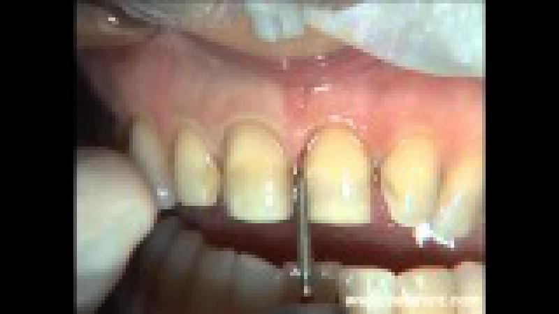Ceodont Estética Dental: Carillas de porcelana. Tallados - Malposiciones