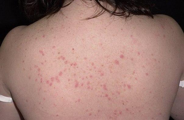 vilechila-psoriaz-perekisyu-vodoroda-otzivi