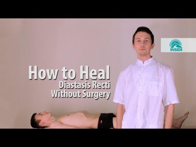 Диастаз прямых мышц живота, как убрать безоперационно . How to Heal Diastasis Recti Without Surgery