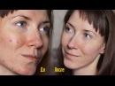 Энзимный Пилинг: Акне / Прыщи / Морщины / Пигментые пятна