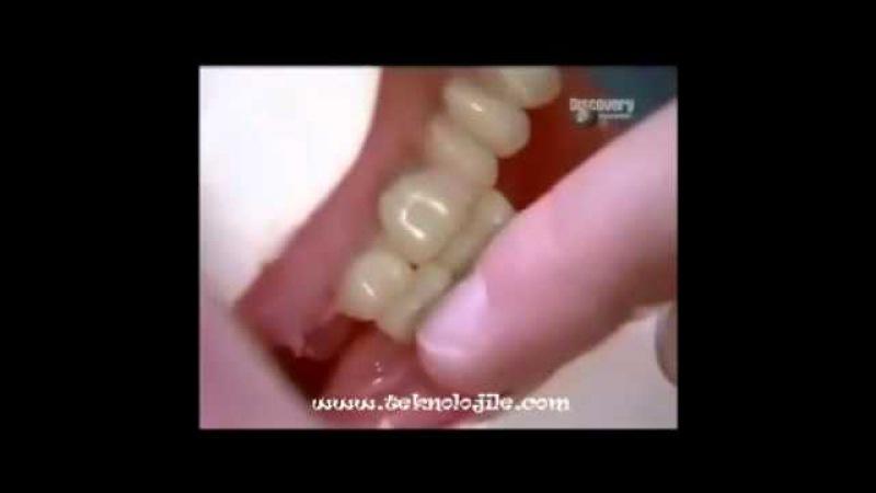 Protez Diş nasıl yapılır - www.teknolojile.com