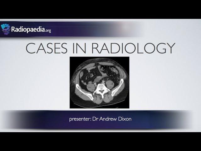 Cases in Radiology: Episode 5 (trauma, CT abdomen)