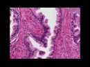 Histopathology Prostate --Nodular hyperplasia