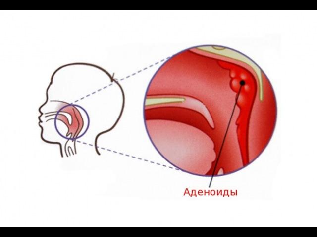 Аденоиды Лечение аденоидов у детей без операции
