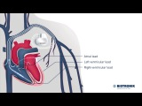 Cardiac Resynchronization Therapy - CRT (Movie 7 BIOTRONIK)