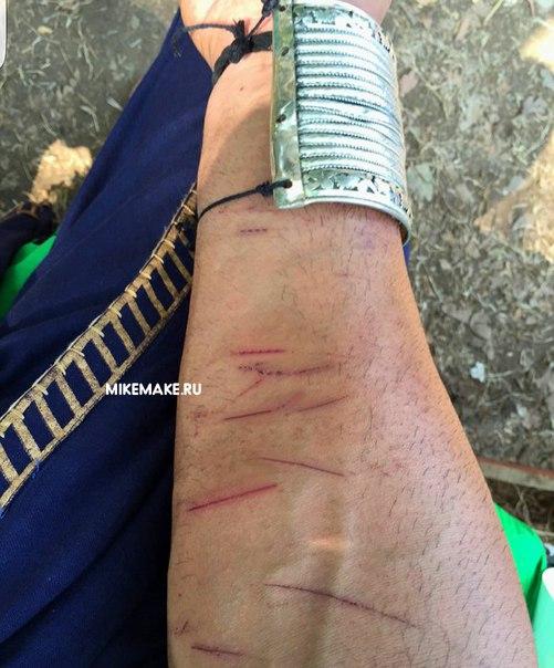 Veeram, новости Болливуда, Кунал Капур, съемки фильма, индийский актер, порез