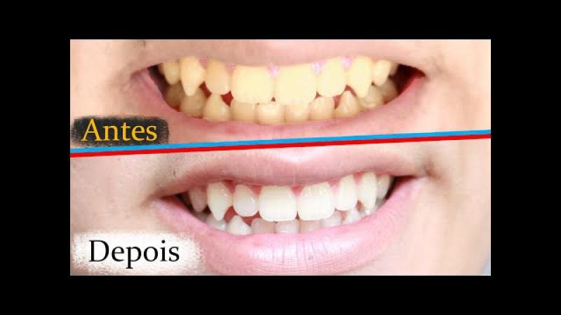 3 formas de clarear os dentes em casa | Rápido e barato