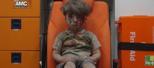 Кадры с окровавленным мальчиком из Алеппо потрясли мир - BBC Русская служба 068962c9630dc