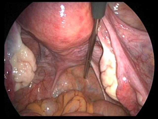 Laparoscopic Gynecologic Anatomy