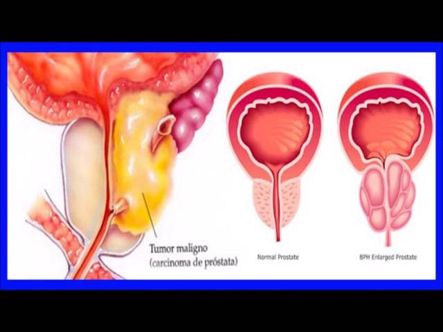 Tratamientos Alternativos para el Cáncer de Próstata