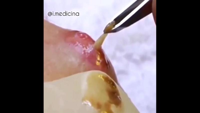 Удаление личинок овода.