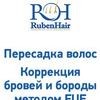 """Пересадка волос в Украине-Клиника """"Ruben Hair"""""""