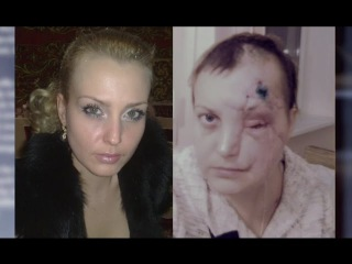 Жизнь без лица: три года в маске. От 09.12.15