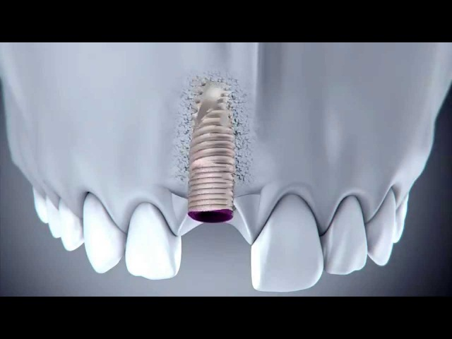V3 implant - Immediate Replacement of an Upper Central