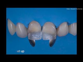 Practical course Direct restoration of frontal teeth. Реставрация фронтальной группы. Шаг за шагом. Стоматология.