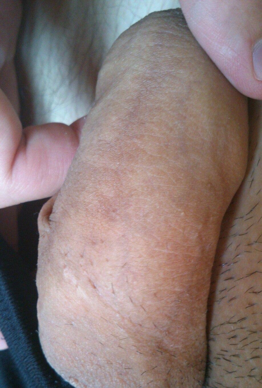 Половой член гранулы фордайса